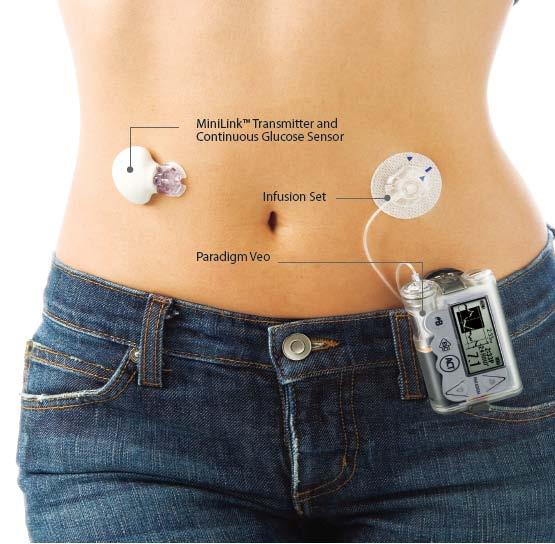 Neue Insulinpumpe Paradigm Veo Kann Helfen Patienten Vor